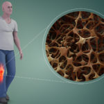 Krill et osteoporose